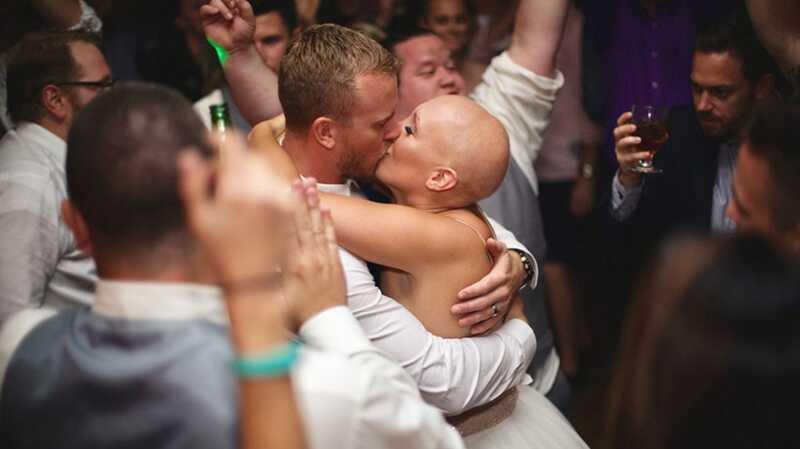 Šī alopēcijas līgava atradās viņas kāzu dienā