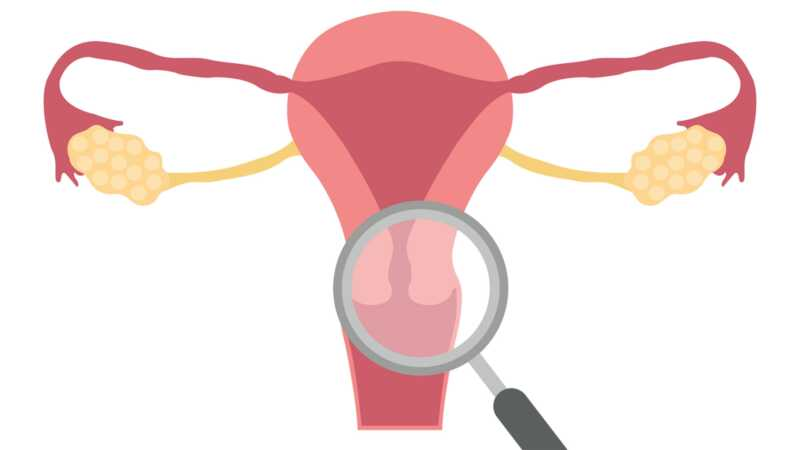 O que é endometriose de dentro para fora?