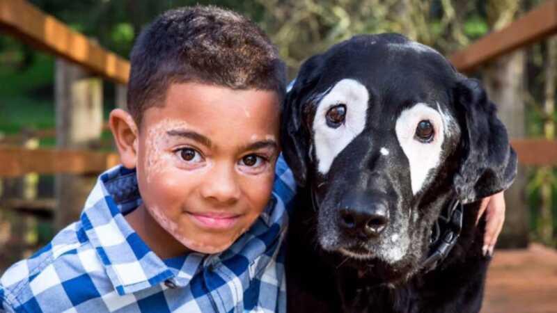 Gutt med vitiligo møter hund med vitiligo